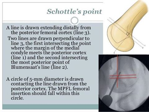 Schottle's Joint
